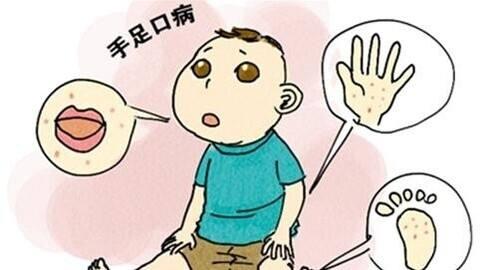儿童手足口病